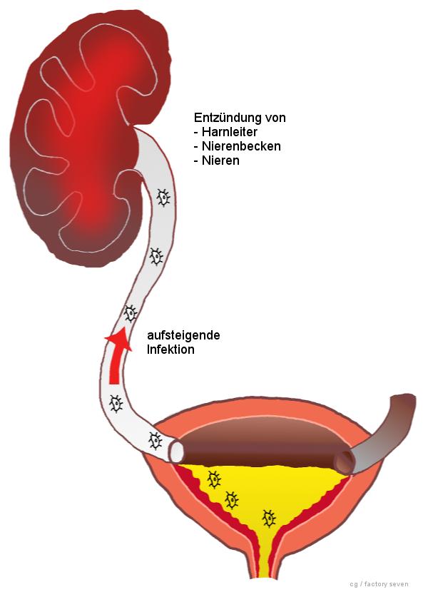 Blasenentzündung: Ursachen und Behandlung