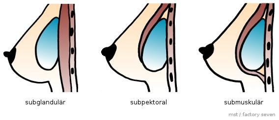 Aussehen brustvergrößerung natürlich Plastische Chirurgie